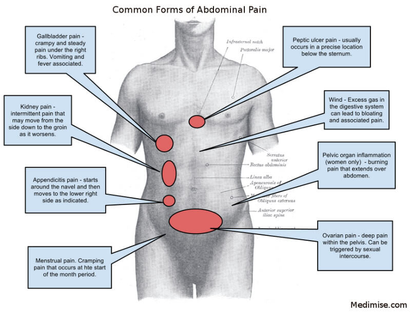 right, left and central abdominal pain, Skeleton