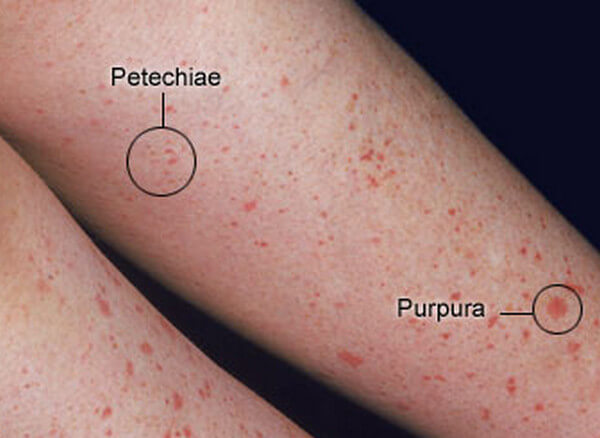 Petechiae - Pictures, Causes, Symptoms, Diagnosis and Treatment