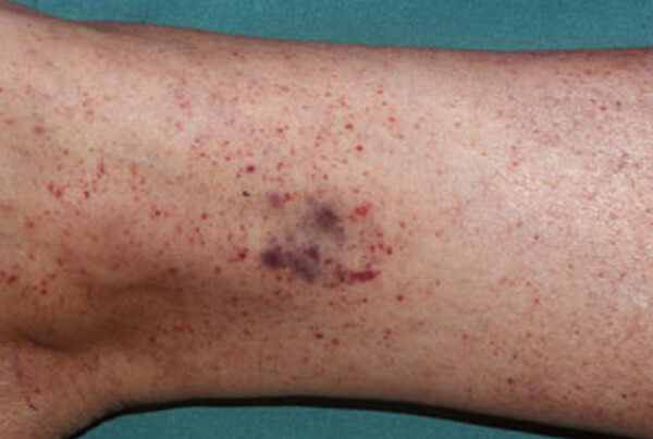 Petechiae photos