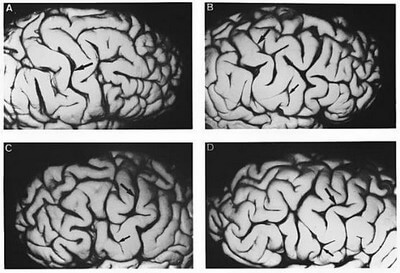 Patterns of the Central Sulcus photo