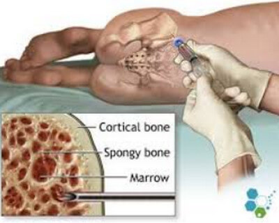 Bone Marrow Aspiration of the Iliac Crest picture