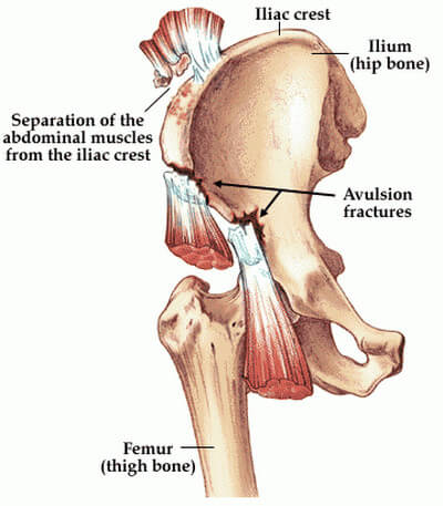 Causes of Pain over the Iliac Crest picture