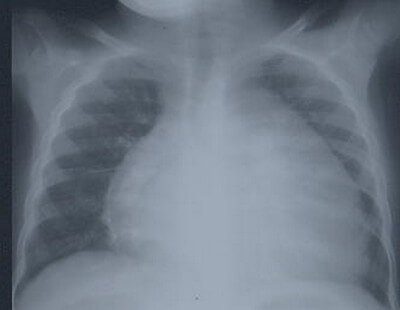 Radiograph showing cardiomegaly picture