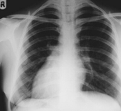 Radiograph showing dextrocardia photo