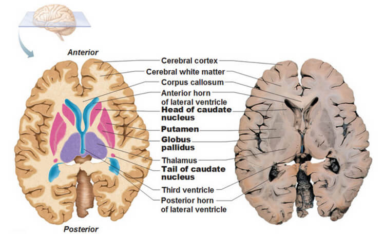 Relationship of the parts of Basal Ganglia to the Thalamus and Ventricles