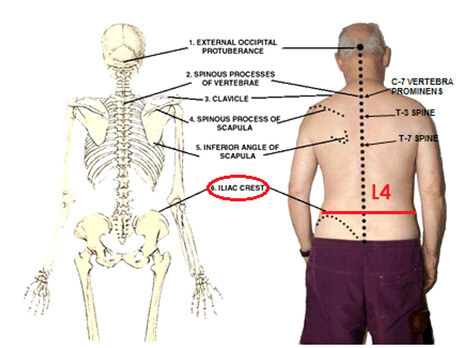 Surface Anatomy of the Iliac Crest picture