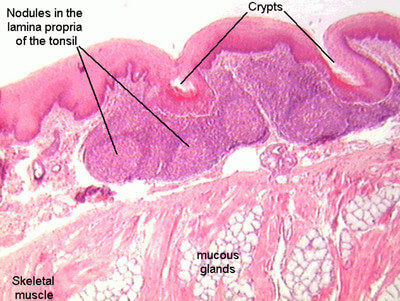 Lingual Tonsils - Tonsillitis and Pictures