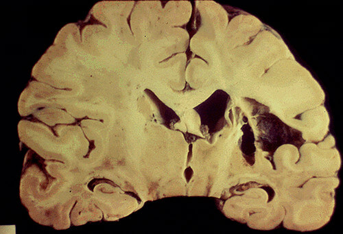 Gross cystic encephalomalacia caused by cerebral infarction