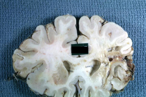 Gross cystic encephalomalacia of the frontal lobe caused by a recent cerebral hemorrhage
