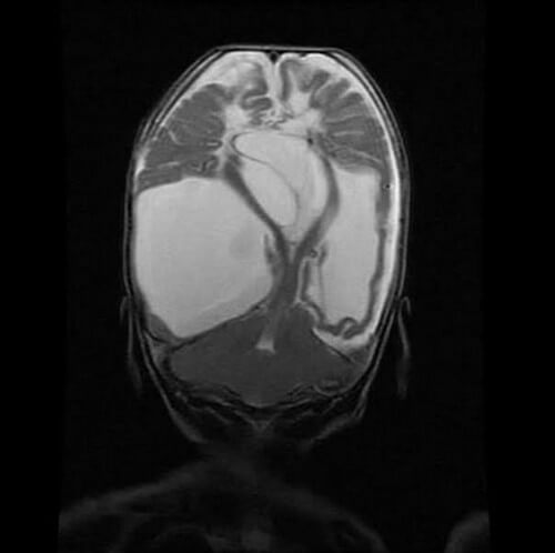 Multiple cystic encephalomalacia on MRI coronal T2-weighted image