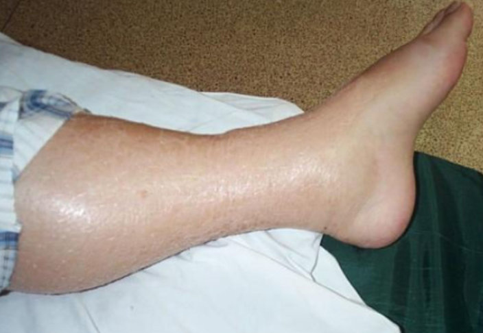 Pitting edema LEG