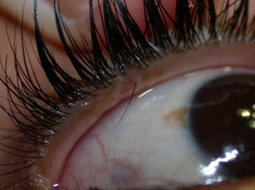 Trichiasis or Ingrown Eyelash 1