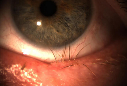 Trichiasis or Ingrown Eyelash 2
