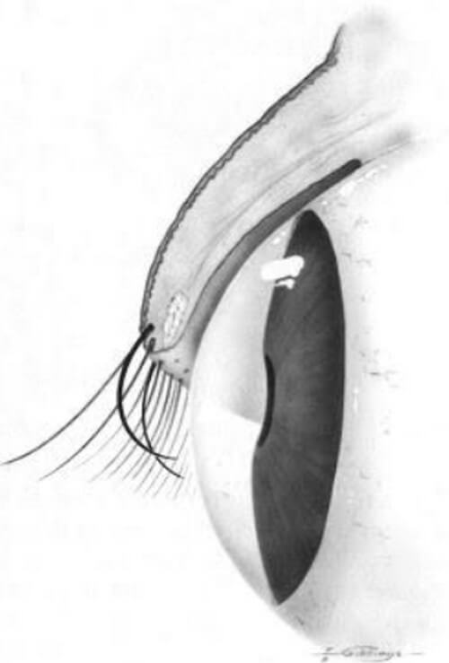 Trichiasis or Ingrown Eyelash