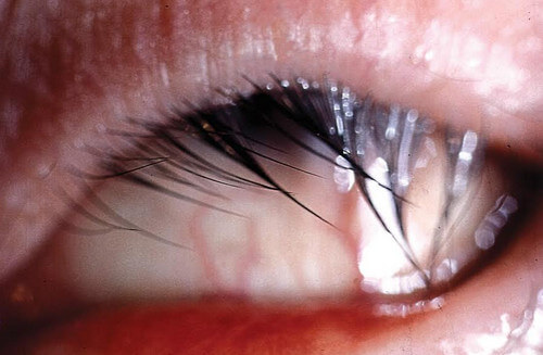 Trichiasis or Ingrown Eyelashes