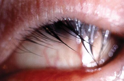 Trichiasis Or Ingrown Eyelash Definition Causes Surgery