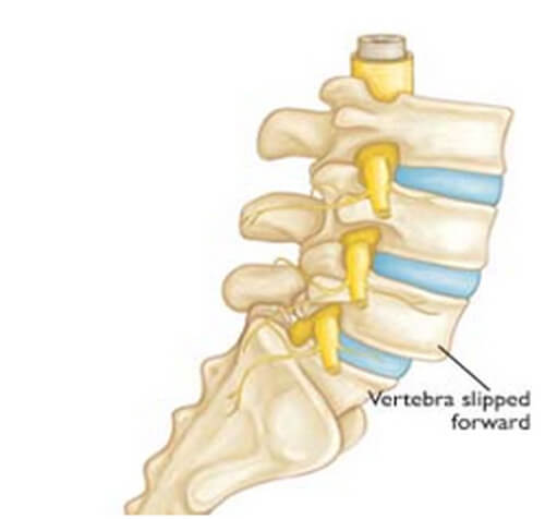 low listhesis Spondylolisthesis occurs when a lumbar vertebrae in the spine slips forward  relative  when it does occur, however, it often manifests itself as pain in the  lower.