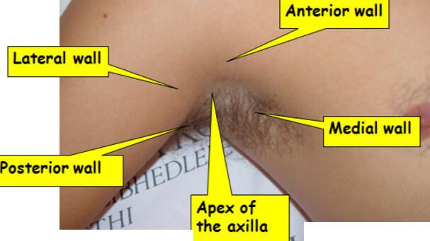 axillary lymph nodes surface markin g
