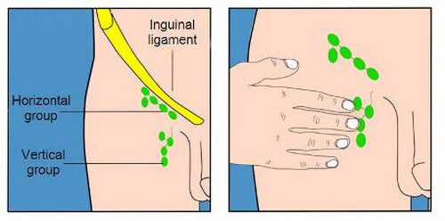 Lymph Nodes: Pictures, Location (Axillary, Cervical, Inguinal Inguinal Lymphadenopathy