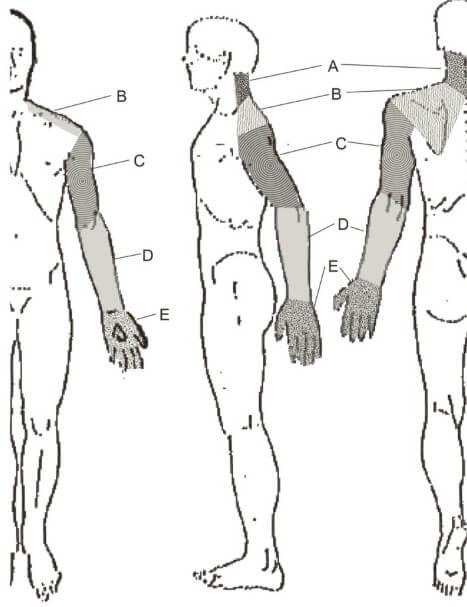 region of pain neck shoulder scapula arm forearm hand fingers