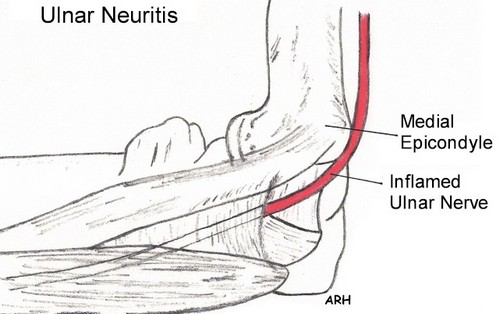 A clinical presentation of a patient suffering from ulnar neuritis.picture