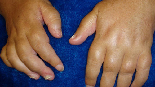 Sausage-like fingers in a patient with psoriatic arthritis.image