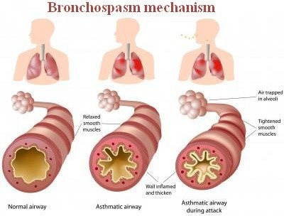 a comparison image of a normal airway and an airway during bronchospasm.picture