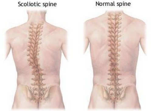 A comparison between a normal spine and a spine with levoscoliosis.photo