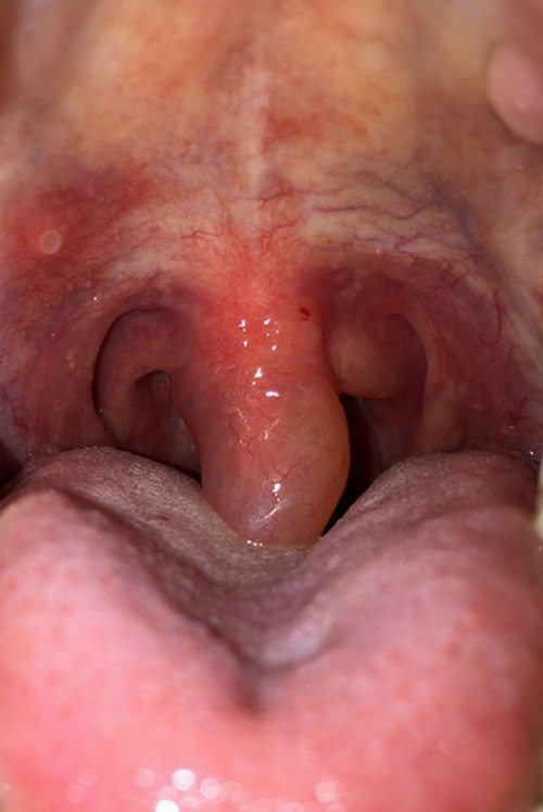 A swollen and irritated uvula.image