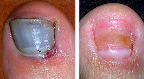 A bruised and severely infected toenail.image