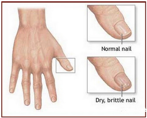 A comparison between a healthy nail and dry, brittle nail.photo