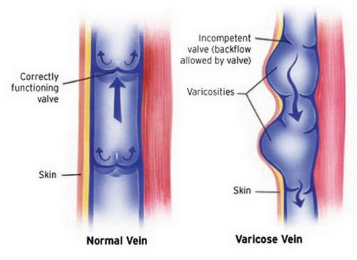 A comparison between a normal vein and a varicose vein.image