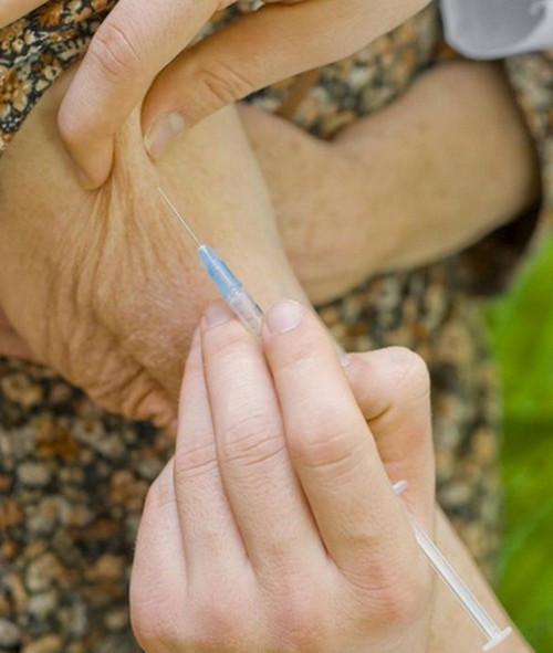 An intravenous injection introduced to the arm of an elderly patient.photo