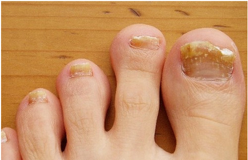 Brittle toenails, crumbling edges, and yellowish discoloration of the nails.image