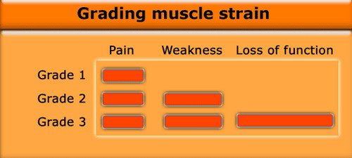 Muscle strain grading and their corresponding symptoms.image