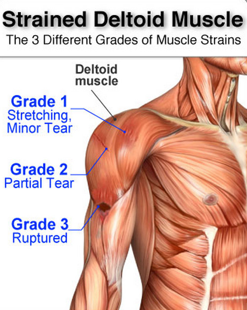 Deltoid Pain Muscle Ligament Anterior Posterior Front Rear