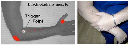 The trigger point of brachioradialis muscle.photo