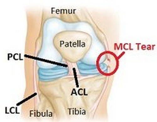 MCL tear which is one of the cause of medial knee pain photo